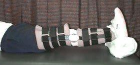 Nismat / Clinicians / Orthopedic Surgery / Rehab Immediately Following ACL Surgery