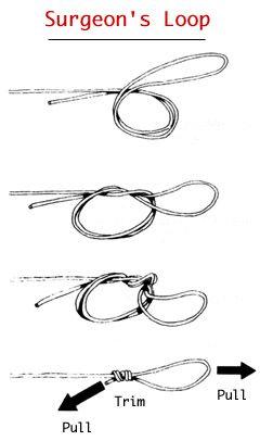 Surgeon's loop