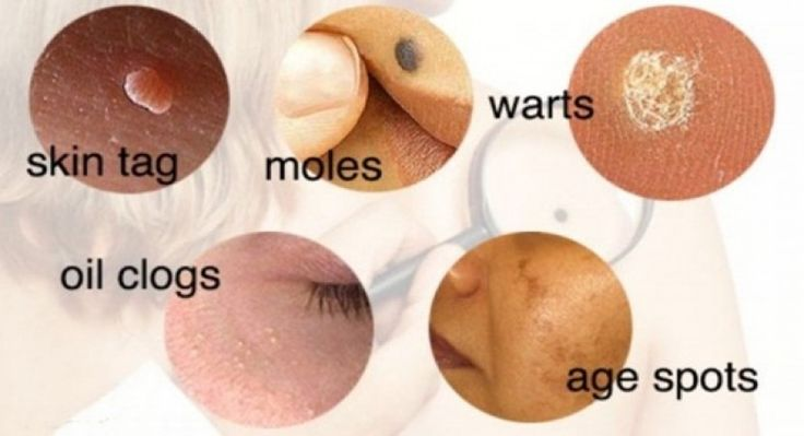 how to get rid of red moles on body
