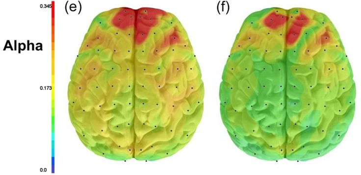 Hyperactivity in brain may explain multiple symptoms of depression