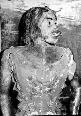 Following her death in 1860, this woman was stuffed & displayed as when she was alive. Born with hypertrichosis, her features were gorilla-like; her nose & ears especially large, face covered with hair, & a double pair of teeth. Her husband had originally purchased her & worked her as a performer. She had a child with the same condition who died after 3 days. She died five days after that (complications from birth), & her husband had both her & the baby mummified & placed in a glass cabinet.