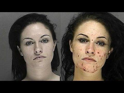 Faces of Meth 2013....SO VERY SAD!!!