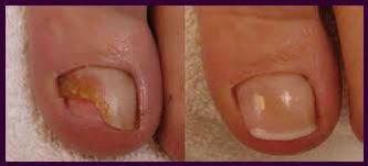 Voor en na reparatie schimmel nagel