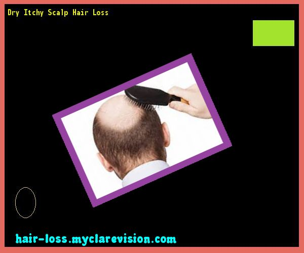 Dry Itchy Scalp Hair Loss 105853 - Hair Loss Cure!