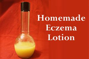 Homemade Eczema Lotion, made from natural, safe ingredients.  I am going to try this on Elle!
