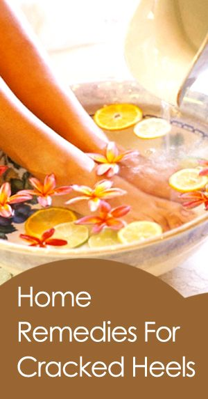 Home Remedies for Cracked Heels and Dry Feet #Remedies #CrackedHeels