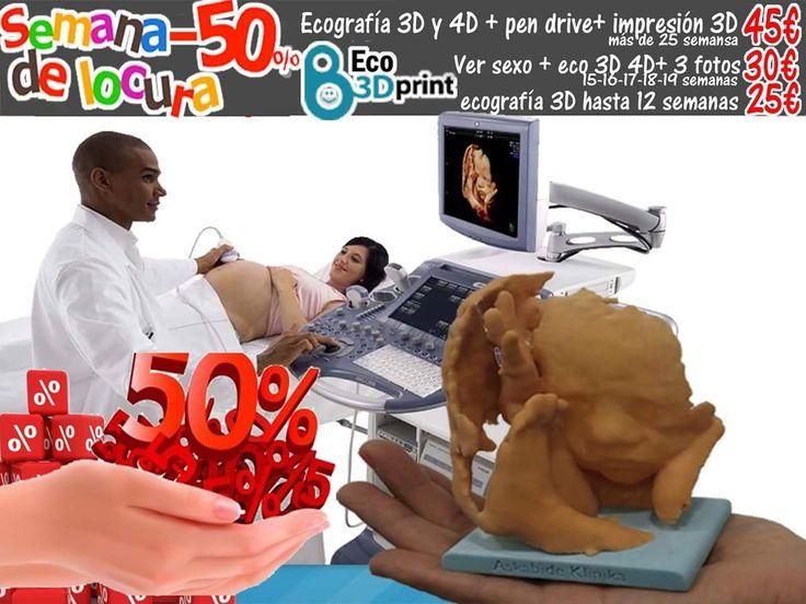 Semana loca en Eco3dprint. Ecografía 3D 4D a mitad de precio del las ofertas.  1.- sesión de Ecografía 3D 4D + fotos y vídeos en un Pen drive + fotos en papel + canastilla del embarazo + impresión 3D (muñequito) + segunda oportunidad si no se deja ver la cara. Todo solo por 45€ Para embarazos de más de 25 semanas.  2.- sesión de Ver el sexo + Ecografias 3D 4D + canastilla del embarazo + segunda opción si no se deja ver el sexo. Todo solo por 30€ Para semanas 15 16 17 18 19   3.- sesión de…