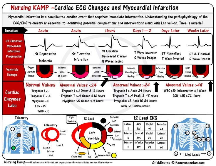 ST elevations monitoring for Infarction STEMI Electrocardiogram ECG EKG Cardiac and Telemetry are continuous monitoring for cardiac abnormalities nursingkamp.com Generally if someone is on telemetry the nurse must be monitoring for ECG changes and monitoring in lead 2 Cardiac 40 -Telemetry ECG TWS 032 Nursing KAMP NCLEX Nursing Study Notes
