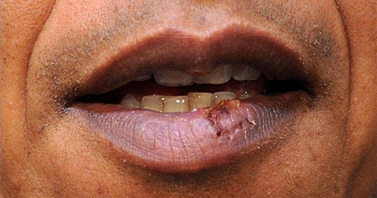 Como utilizar cremes antivirais para herpes labiais. Infelizmente, não existe cura para o vírus herpes simplex que provoca a herpes labial, no entanto, existe uma série de tratamentos para ajudar a prevenir e tratar os surtos da doença. Além de abordar os causadores comuns, existem várias fórmulas de cremes antivirais que têm se mostrado eficazes no tratamento das feridas labiais.
