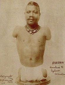 Prince Randian or Prince Rardion (ca. 1871 – December 19, 1934), also known as The Snake Man, The Living Torso, The Human Caterpillar and a variety of other names was a famous limbless sideshow performer of the early 1900s, best known for his ability to roll cigarettes with his lips. He was reportedly brought to the United States by P.T. Barnum in 1889 and was a popular carnival and circus attraction for 45 years.
