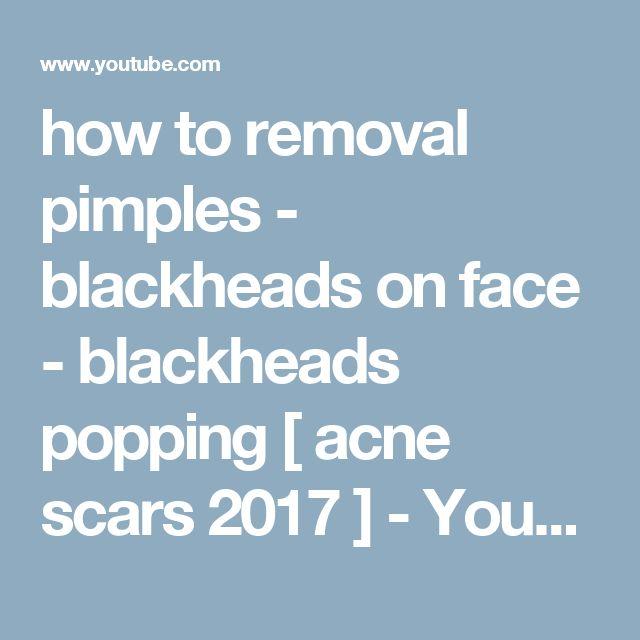 The 25+ best How to pop blackheads ideas on Pinterest ...