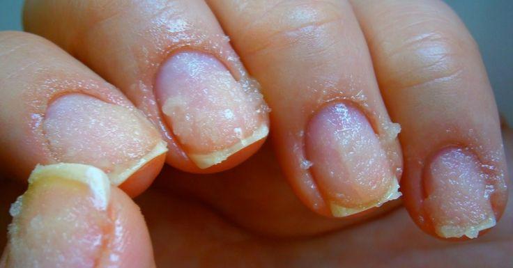 Dlho som nosila gélové nechty, no keď som im dala koniec, moje nechty boli v katastrofálnom stave. Pomohlo mi až toto!