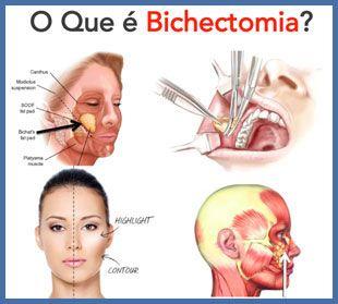 Quando aumentada, essa gordura pode alterar o formato do rosto, deixando-o arredondado. A cirurgia para retirar o excesso da Bola de Bichat é chamada de Bichectomia e pode ser feita com anestesia local, com ou sem sedação, ou em casos específicos sob anestesia geral. As incisões são por dentro da boca, sem cicatrizes aparentes e o procedimento dura em torno de 30 minutos.