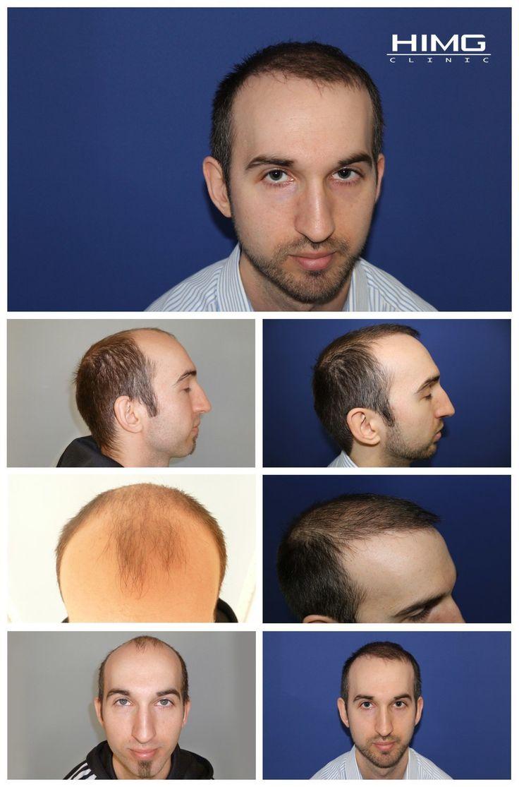 Haare implantieren bremen