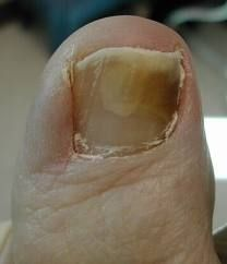 The Yellow Toenails Cure - Get Rid Of Yellow Toe Nail For Good - Fungal Nail Infection Treatment - Cure Infected Toenails Fast