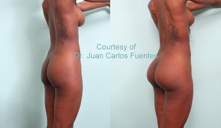 Plastic surgery butt implants