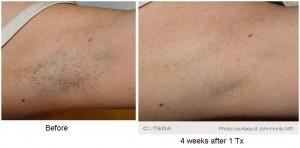 IPL-Laser Hair Removal. The permanent solution to unwanted hair. Comfortable, fast, easy and efficient.