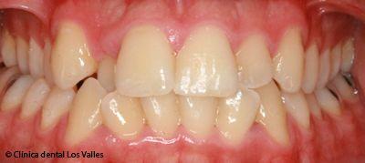 El blanqueamiento dental, el compañero perfecto tras la ortodoncia para lucir sonrisa