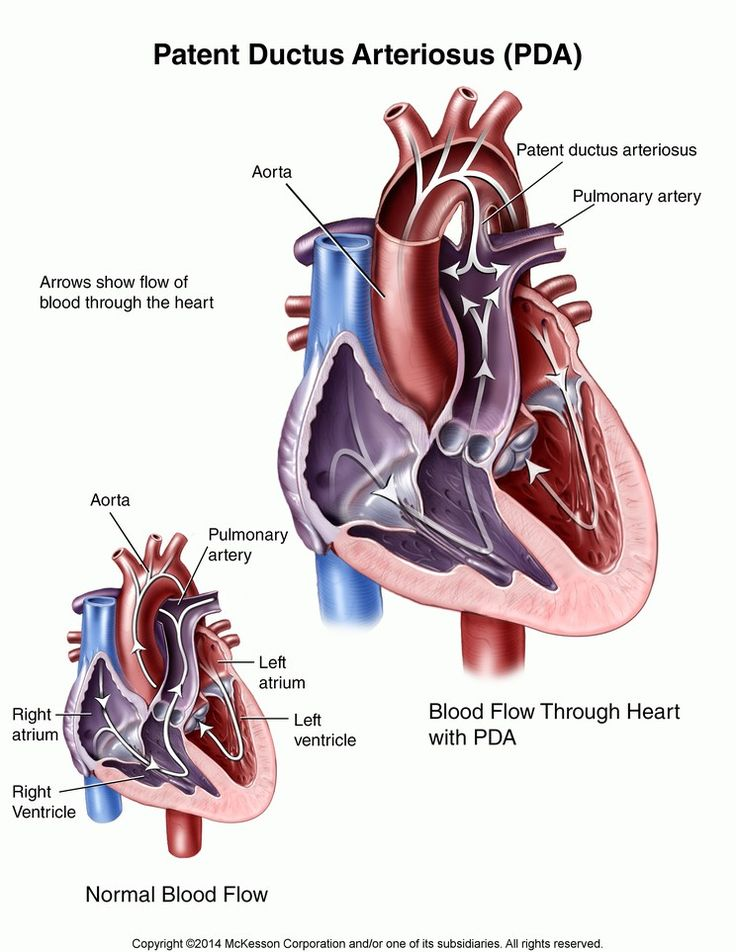 50 best Patent Ductus Arteriosus (PDA) images on Pinterest | Nicu ...