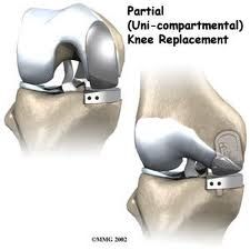 Uni-compartmental knee replacement is the treatment for partial Knee Osteoarthritis. To understand what uni-condylar or partial knee replacement means, you will need to understand the anatomy of the knee. Visit our website and get complete information on this.