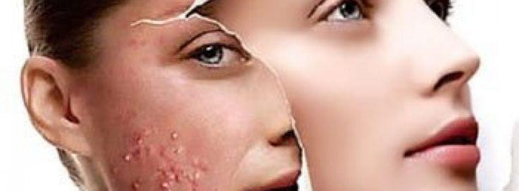 Hoe verhelp je Acne, eczeem en andere huidproblemen op een natuurlijke wijze