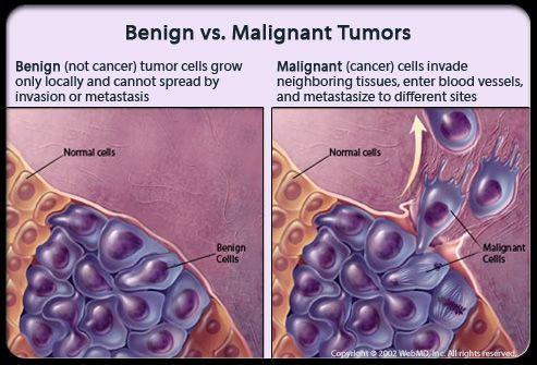 Radiation for benign breast tumors really