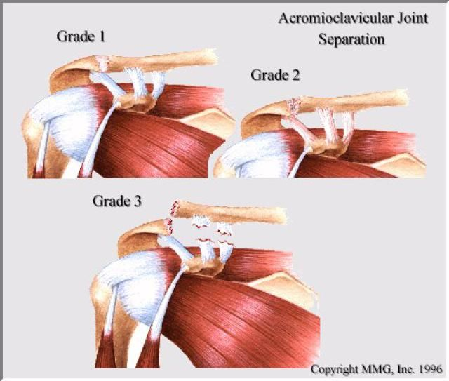 Treatment of a shoulder separation can usually be accomplished with simple steps, but more severe injuries to the AC joint may require surgery. Page 2.