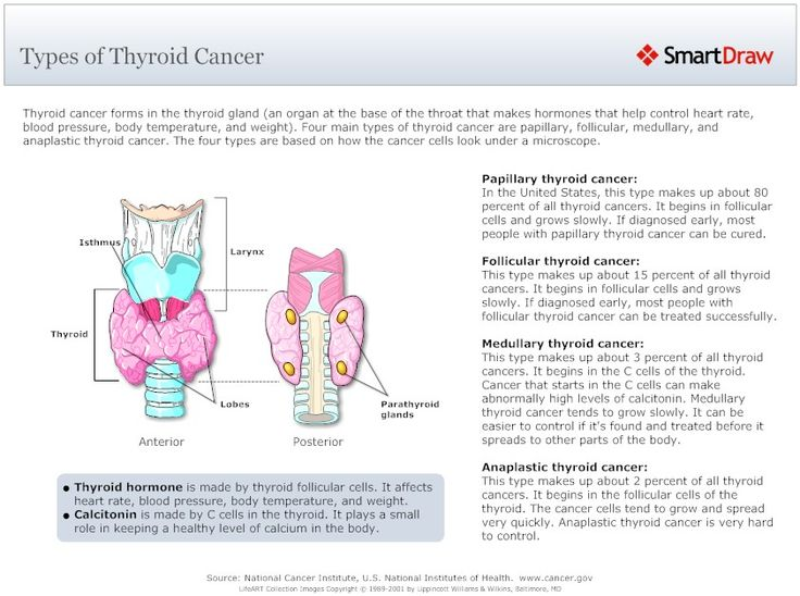 the characteristics symptoms and treatment of thyroid cancer a malignancy of the endocrine system Anaplastic thyroid cancer the rarest form of thyroid is anaplastic thyroid cancer which accounts for only 1-2% of all thyroid cancers and develops in patients 65 years and older individuals will notice a large hard lump on their neck that grows rapidly.