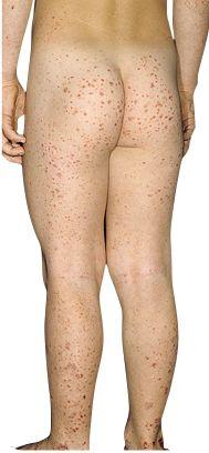 Henoch-Schönlein purpura (HSP).  pathognomonic round, palpable, symmetrical rash that appears on the dependent areas of the legs and buttocks.