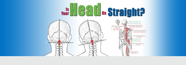 Is Your Head on Straight? Upper Cervical Chiropractic (217)-698-7900