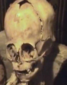Bizarre Mummy With Giant Head Discovered In Peru: Giants Ufos Supernatural, History Achaeology Giants, Nephilim Skulls, Aztecs Incas Mayas Toltecs, Ancient Giants, Mummyhead Jpg 247 335, Ancient Aliens, Aztecs Mayas Incas Olmecs, Skulls Galore