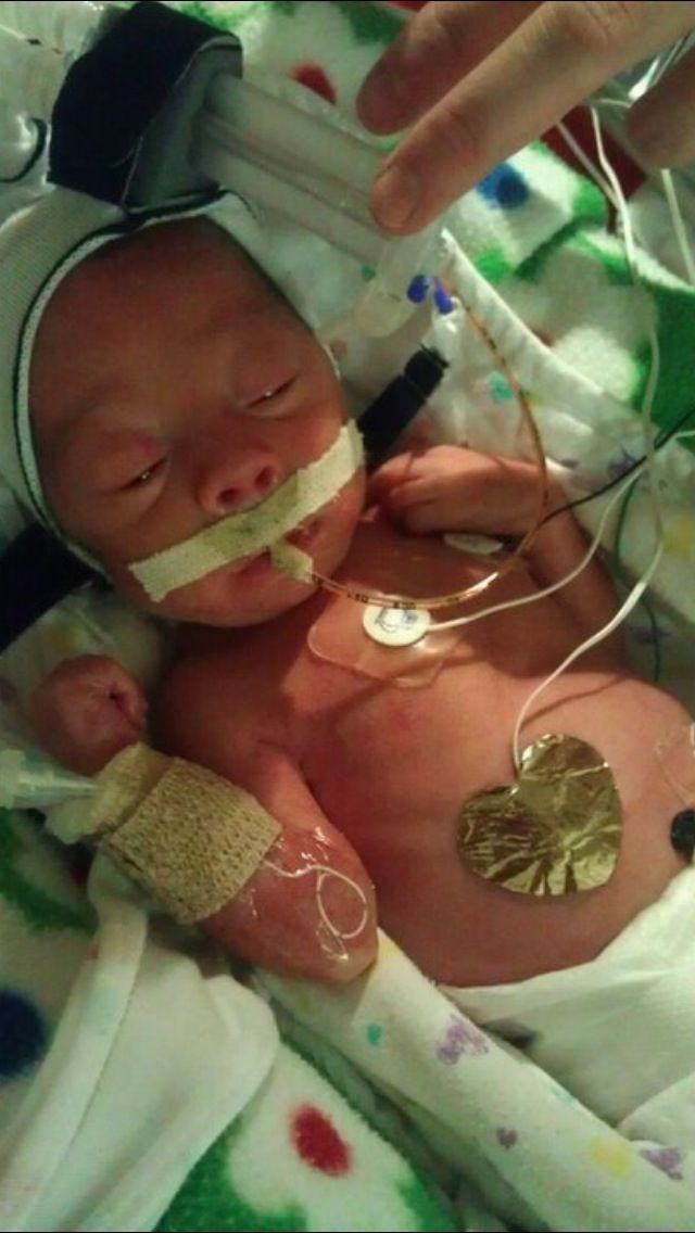 Images of Premature Babies 18 Weeks - www industrious info