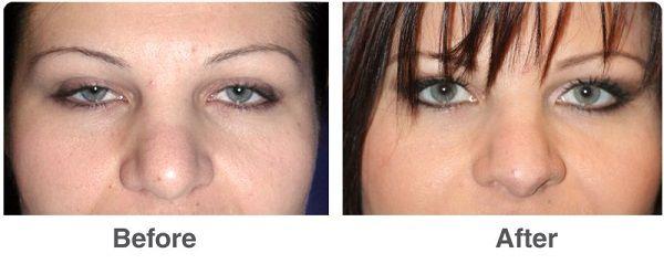 eyelid surgery blepharoplasty eyelid surgery blepharoplasty