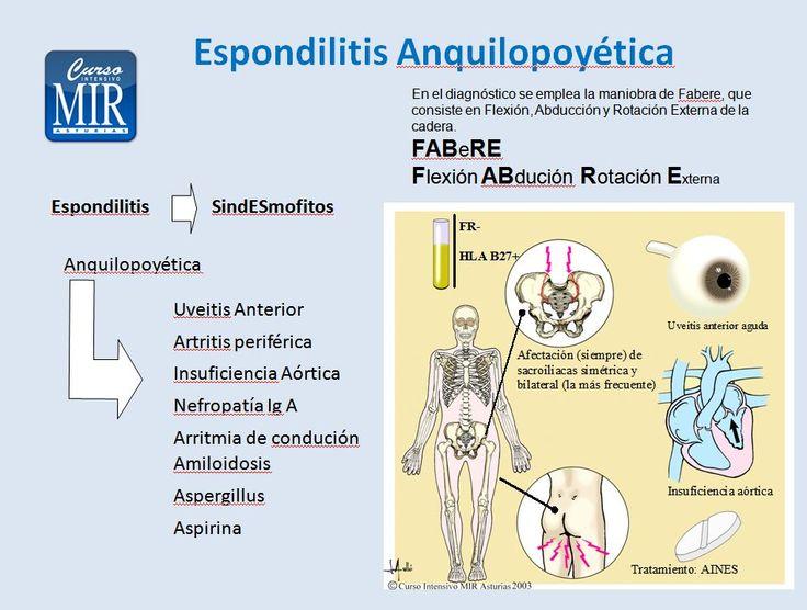 Espondilitis Anquilopoyética - #Reumatología