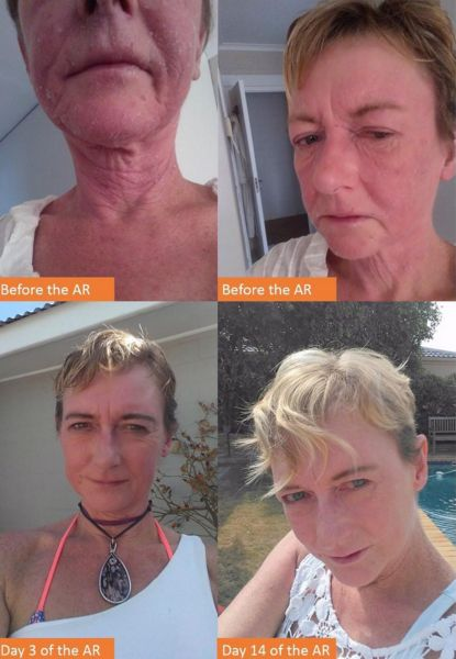 """Michelle, 55, has been on Aron Regimen for 2 weeks after a lifetime of chronic eczema. """"My skin and eyes are clear and I still can't believe how wonderful I feel. I am off all other medication and only using Dr Aron's creams. Truly amazing results."""""""