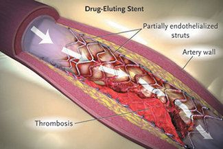 Drug Eluting Stents Prevent Leg Amputation | MediMoon