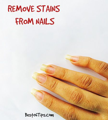 Natural nails get discoloured from one of two reasons – a problem with the nail or staining from nail polish pigments. Assuming your nails are healthy, most staining is from prolonged exposure to nail polish, and can range from a slight discoloration to a really dark yellow, almost brown stain or even a stain of the