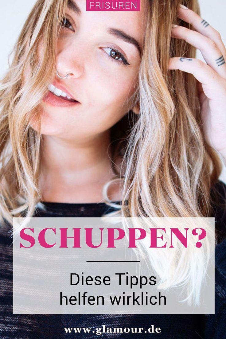 Tipps Schuppen