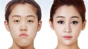 plastic surgery - : Yahoo Hasil Image Search