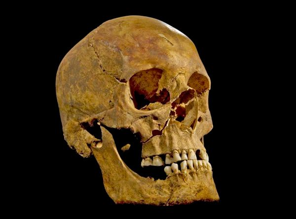 Hacked, sliced, stripped, slung over a horse and stabbed in the bottom. Tradition tells us that Richard III - the last Plantagenet king of England - met an especially bloody end in the battle of Bosworth Field on 22 August 1485. Now we have a body to go with the legend.