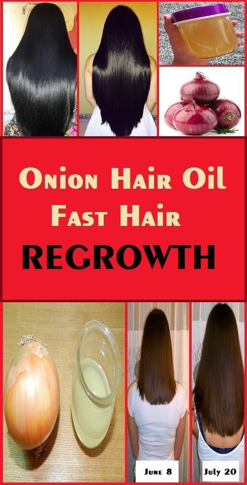 Onion Hair Oil – Fast Hair Regrowth, Hair Loss, Long & thick hair – Scientifically Proven