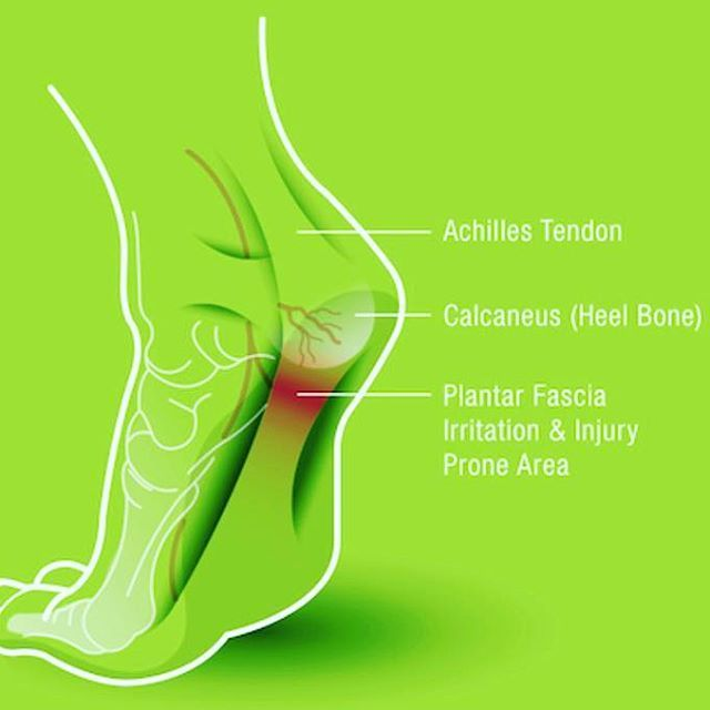 Having an active lifestyle is great but has its draw back at times. For example, high impact sports like rugby, football, basketball, tennis, gymnastics, dance, badminton, running and many more can cause multiple foot injuries. A common injury related to foot pain is plantar fasciitis.  WHAT is Plantar Fasciitis?  Plantar Fascia is a thick band of tissue that is jointed between the heel bone to the rest of the foot. Plantar Fasciitis is the medical term used where the tissue that connects…