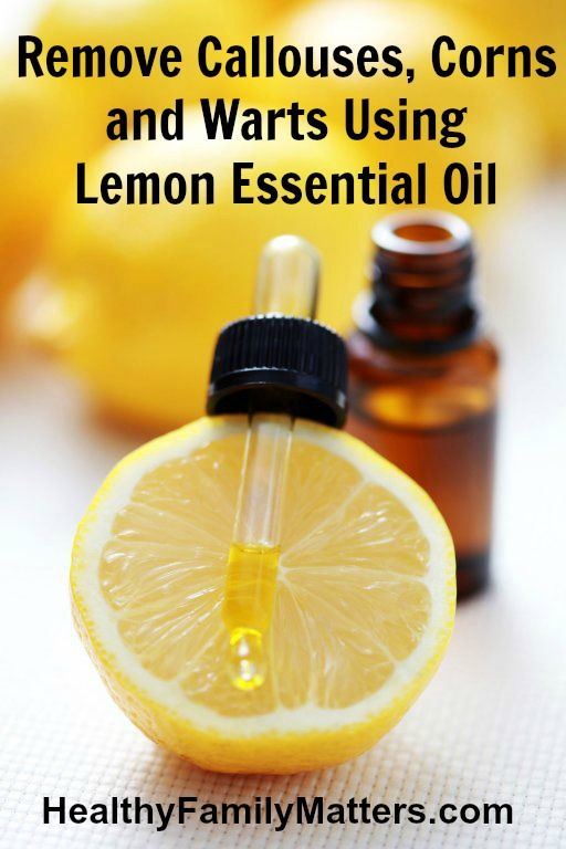 Remove Callouses, Corns and Warts Using Lemon Essential Oil healthyfamilymatters.com #essentialoils #naturalremedies #yleo