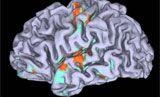 Conoscere due o più idiomi previene la perdita delle capacità cognitive e rallenta le malattie degenerative del cervello come l'Alzheimer. E i miglioramenti non sono solo nelle persone bilingui ma anche chi ha appreso un altro linguaggio in età adulta