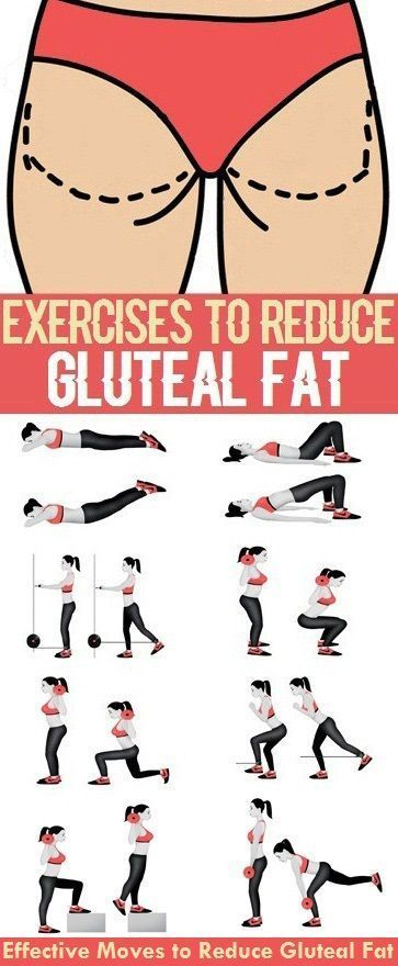 how to lose gluteal fat
