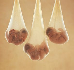 Anne Geddes photo