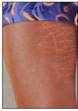 Stretch Marks: Guide on How to Prevent and Get Rid of Them
