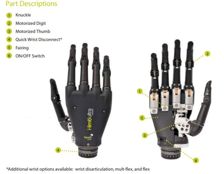 3d printed prosthetic hand | World's First App-Controlled Prosthetic Hand Allows Natural Functions