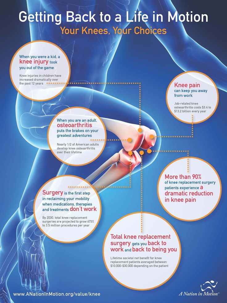 Beyond Surgery Day: The Full Impact of Knee Replacement