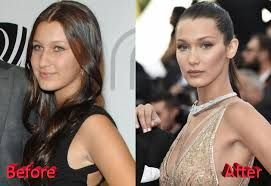 54 Best Plastic Surgery Before And After Hollywood Images On Pinterest Plastic Surgery Before